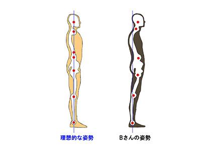腰椎の前弯